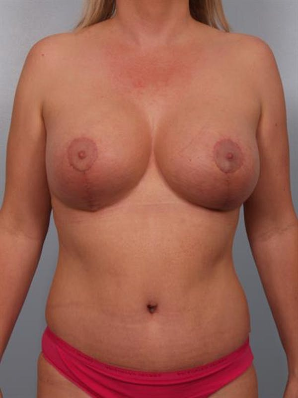 Breast Lift with Implants Gallery - Patient 1612676 - Image 4
