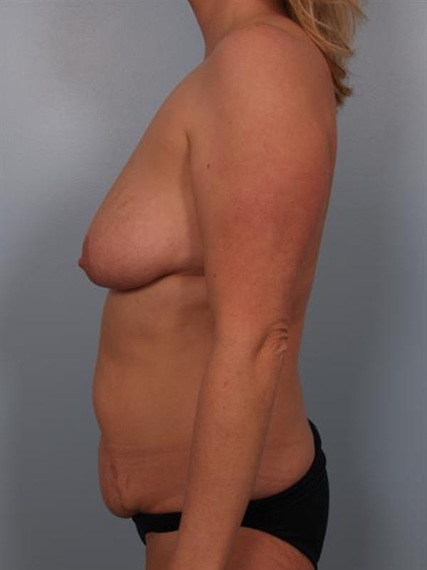 Breast Lift with Implants Gallery - Patient 1612676 - Image 5