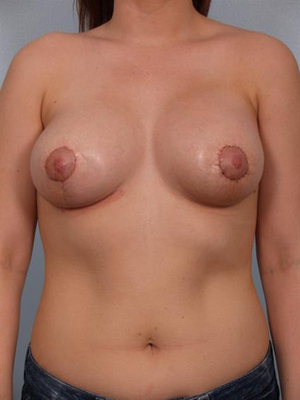 Breast Lift with Implants Gallery - Patient 1612677 - Image 4