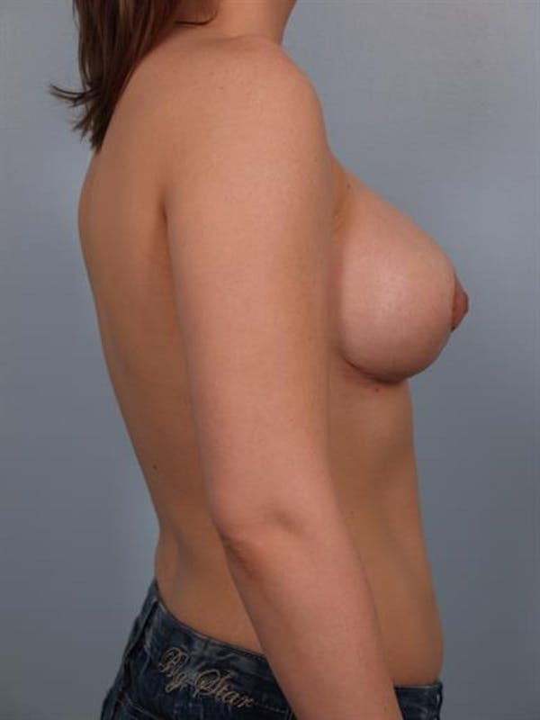 Breast Lift with Implants Gallery - Patient 1612677 - Image 6