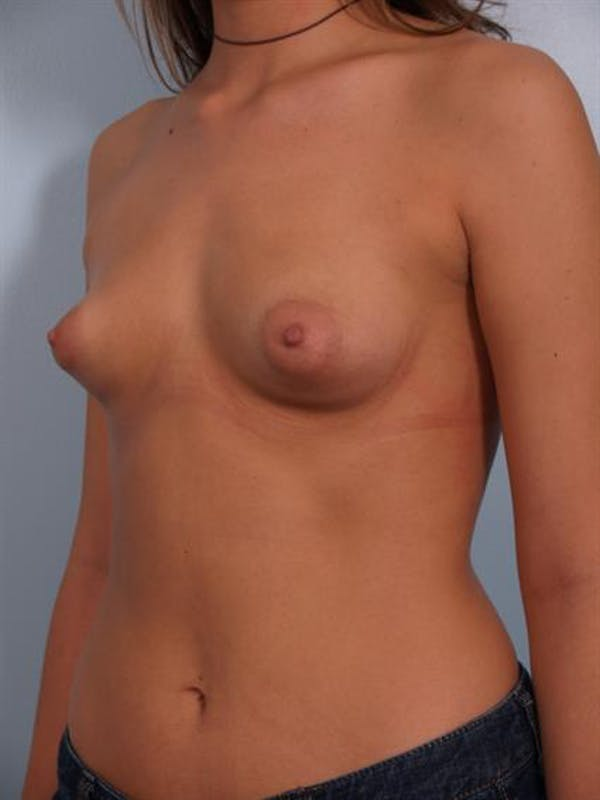 Breast Lift with Implants Gallery - Patient 1612679 - Image 1