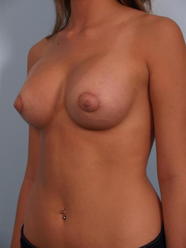Breast Lift with Implants Gallery - Patient 1612679 - Image 2