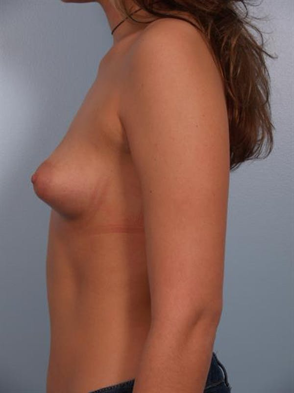Breast Lift with Implants Gallery - Patient 1612679 - Image 5