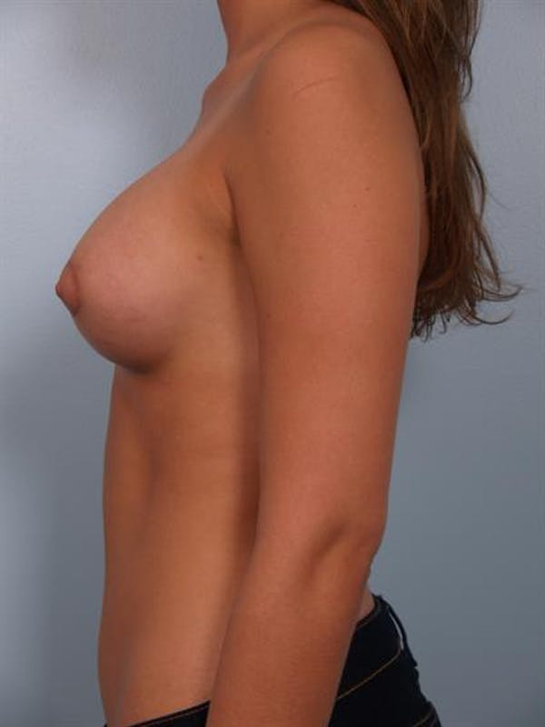 Breast Lift with Implants Gallery - Patient 1612679 - Image 6