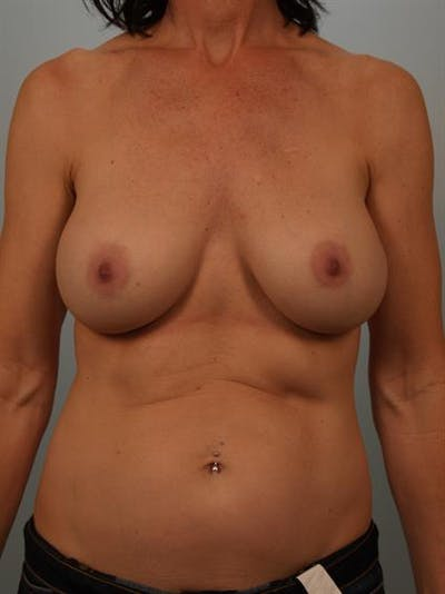 Breast Lift with Implants Gallery - Patient 1612680 - Image 1