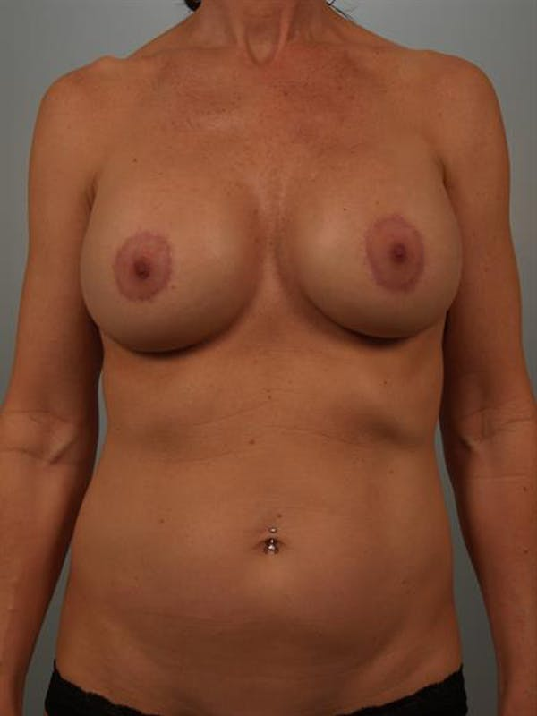Breast Lift with Implants Gallery - Patient 1612680 - Image 2