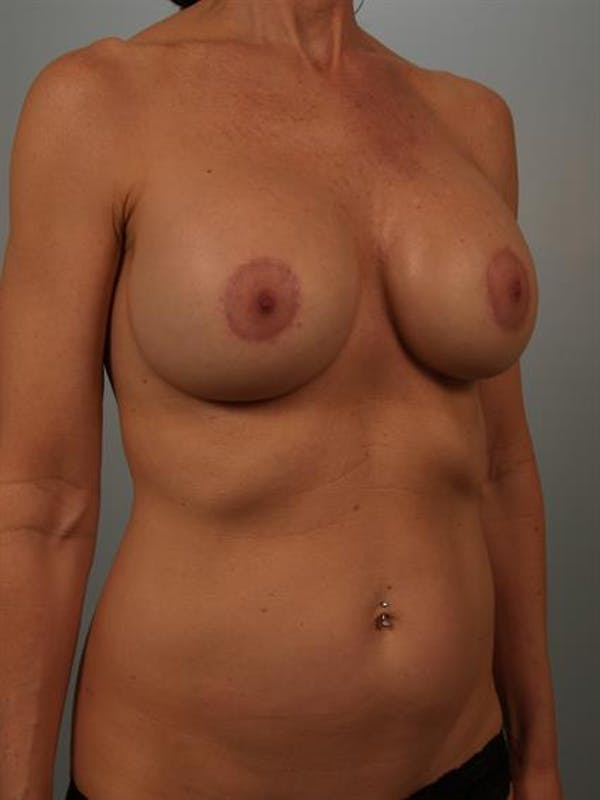 Breast Lift with Implants Gallery - Patient 1612680 - Image 4