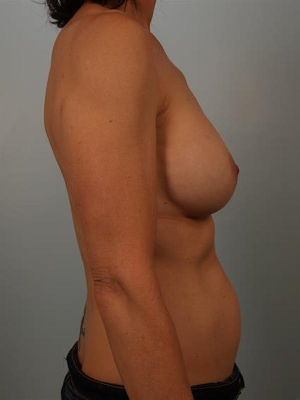 Breast Lift with Implants Gallery - Patient 1612680 - Image 5