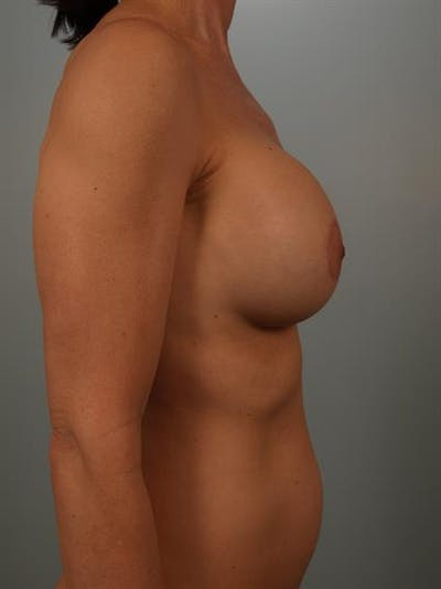 Breast Lift with Implants Gallery - Patient 1612680 - Image 6