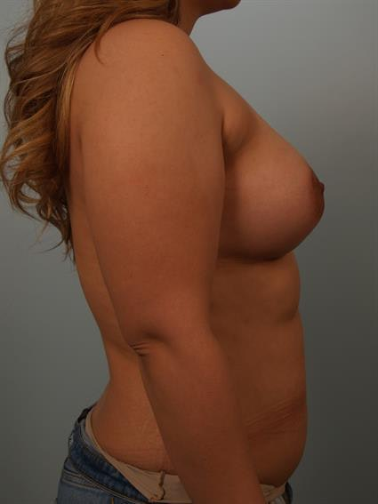 Breast Lift with Implants Gallery - Patient 1612681 - Image 2