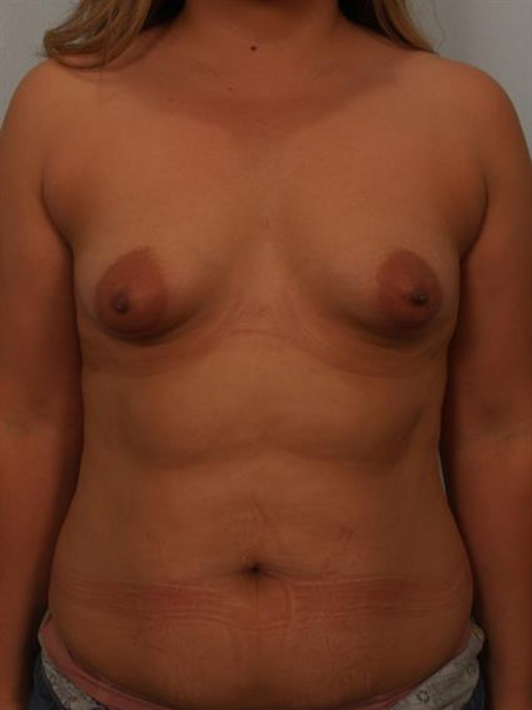 Breast Lift with Implants Gallery - Patient 1612681 - Image 3
