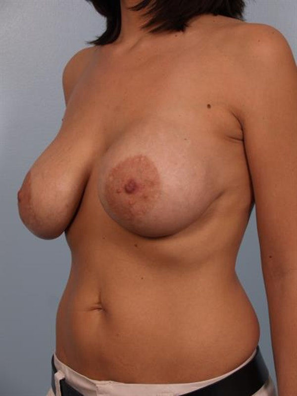 Breast Lift with Implants Gallery - Patient 1612682 - Image 1