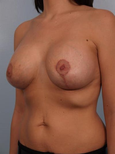 Breast Lift with Implants Gallery - Patient 1612682 - Image 2