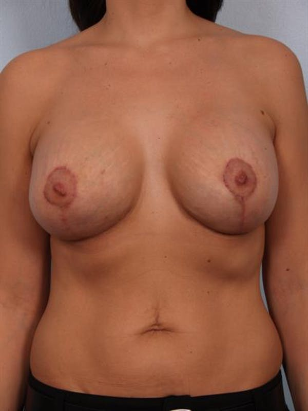 Breast Lift with Implants Gallery - Patient 1612682 - Image 4