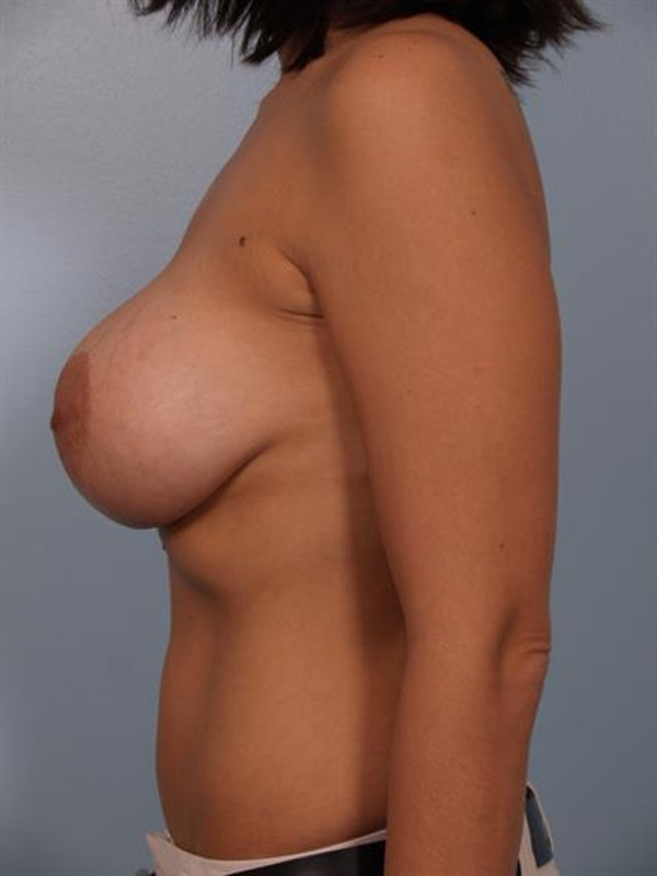 Breast Lift with Implants Gallery - Patient 1612682 - Image 5