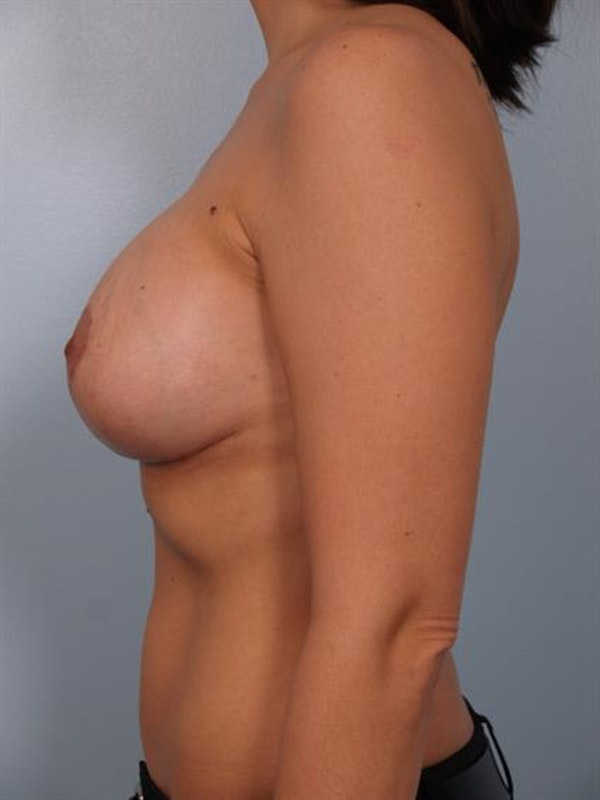 Breast Lift with Implants Gallery - Patient 1612682 - Image 6
