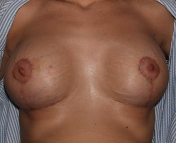 Breast Lift with Implants Gallery - Patient 1612682 - Image 8
