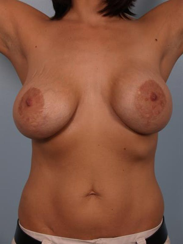 Breast Lift with Implants Gallery - Patient 1612682 - Image 9