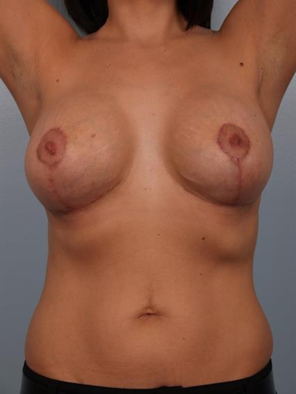 Breast Lift with Implants Gallery - Patient 1612682 - Image 10