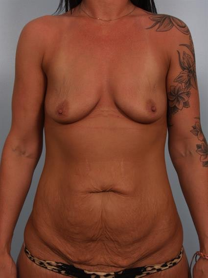 Breast Lift with Implants Gallery - Patient 1612683 - Image 1