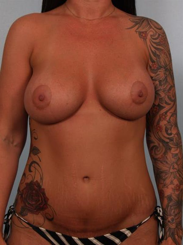 Breast Lift with Implants Gallery - Patient 1612683 - Image 2