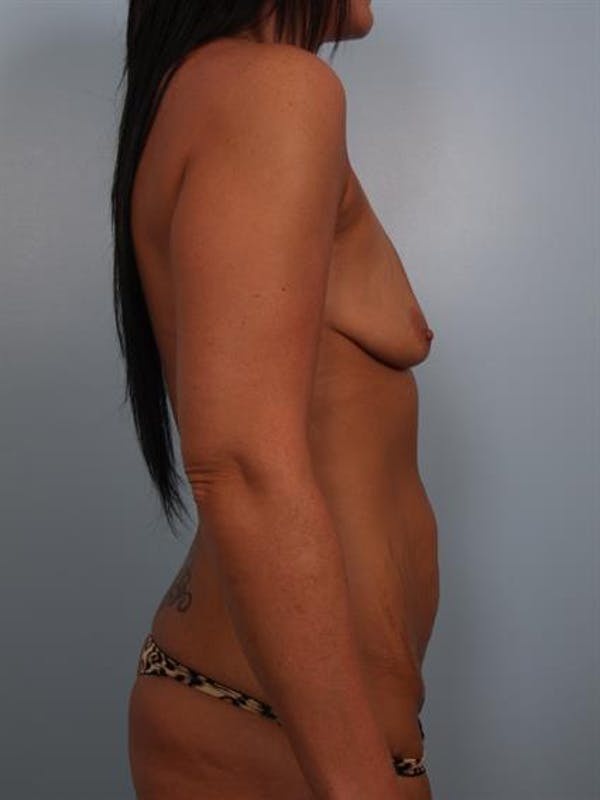 Breast Lift with Implants Gallery - Patient 1612683 - Image 3