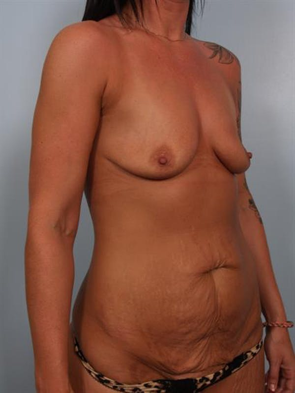 Breast Lift with Implants Gallery - Patient 1612683 - Image 5