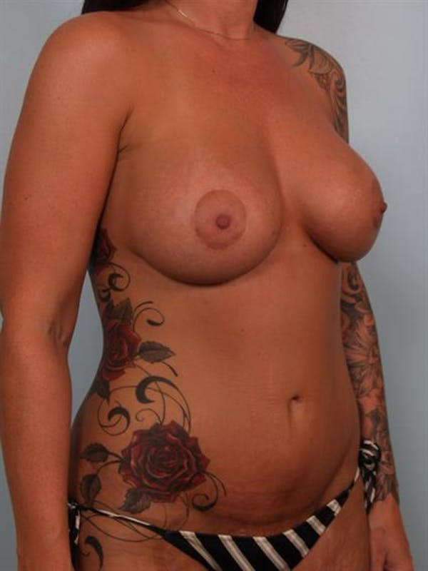 Breast Lift with Implants Gallery - Patient 1612683 - Image 6