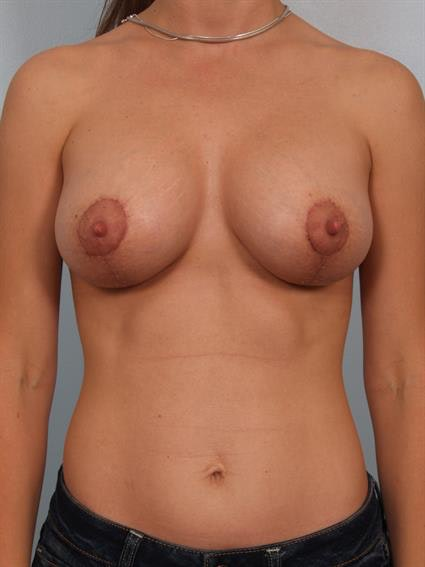 Breast Lift with Implants Gallery - Patient 1612685 - Image 2