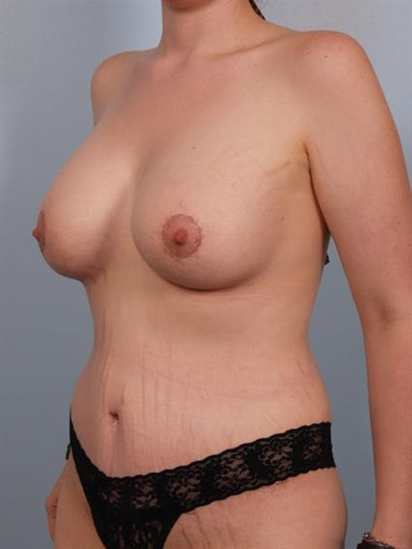 Breast Lift with Implants Gallery - Patient 1612686 - Image 2