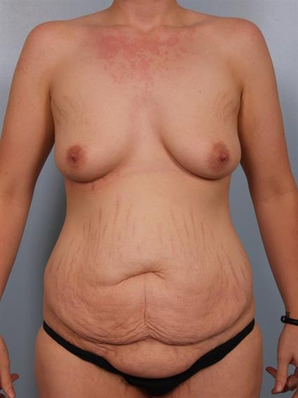 Breast Lift with Implants Gallery - Patient 1612686 - Image 3