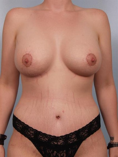 Breast Lift with Implants Gallery - Patient 1612686 - Image 4