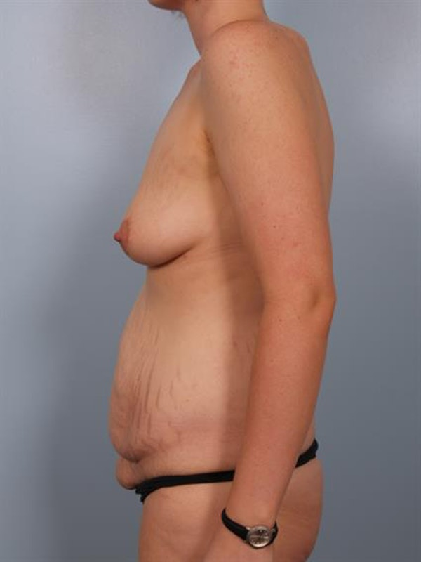 Breast Lift with Implants Gallery - Patient 1612686 - Image 5