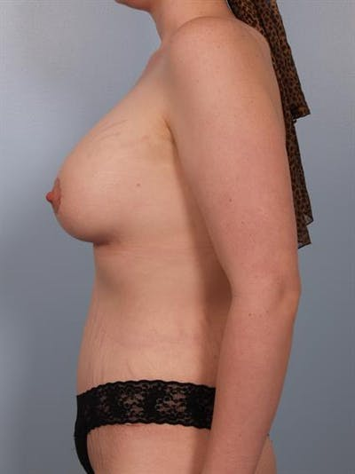 Breast Lift with Implants Gallery - Patient 1612686 - Image 6