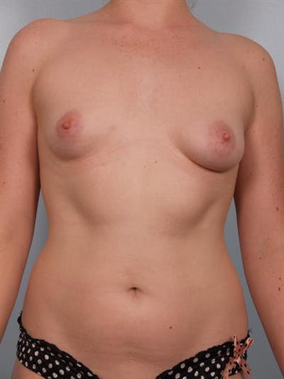 Breast Lift with Implants Gallery - Patient 1612687 - Image 1