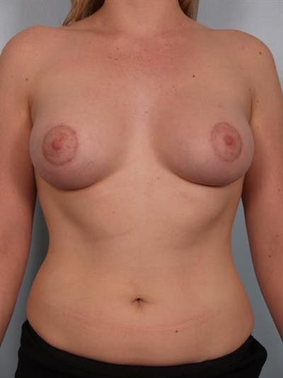 Breast Lift with Implants Gallery - Patient 1612687 - Image 2