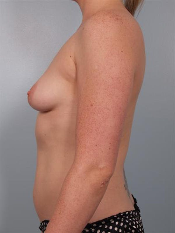 Breast Lift with Implants Gallery - Patient 1612687 - Image 3
