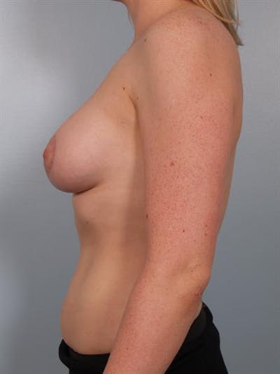 Breast Lift with Implants Gallery - Patient 1612687 - Image 4