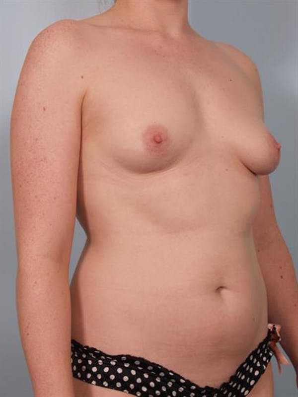 Breast Lift with Implants Gallery - Patient 1612687 - Image 5