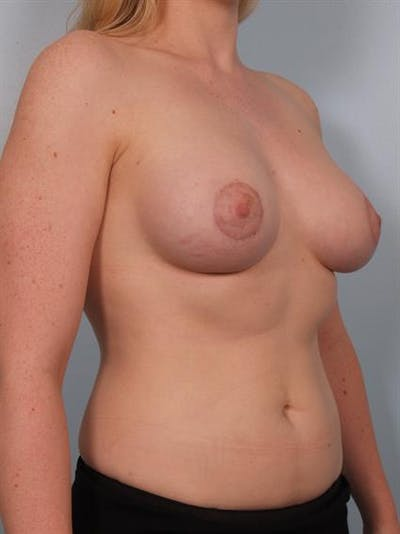 Breast Lift with Implants Gallery - Patient 1612687 - Image 6