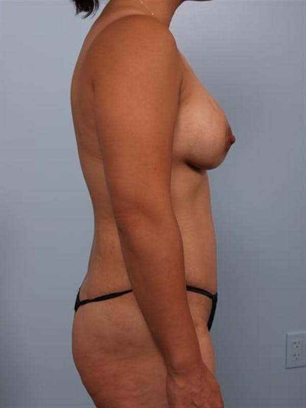 Breast Lift with Implants Gallery - Patient 1612688 - Image 2