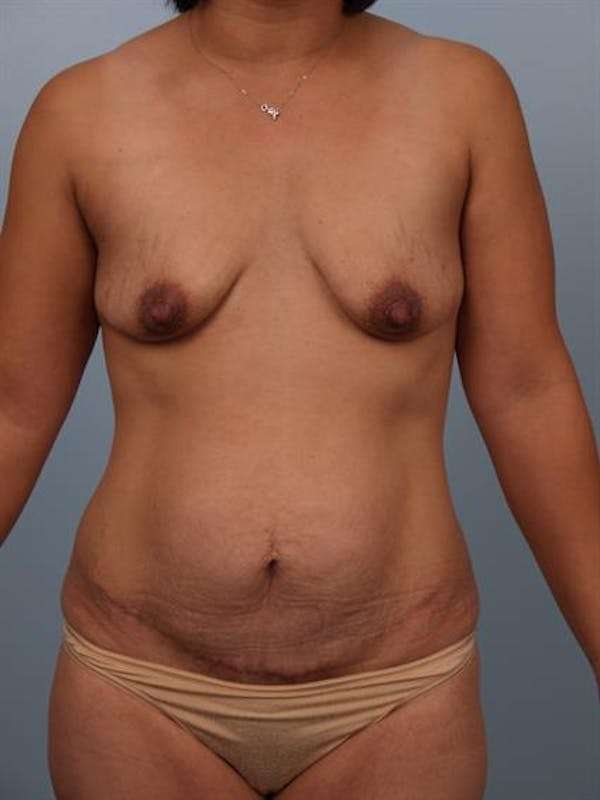 Breast Lift with Implants Gallery - Patient 1612688 - Image 3