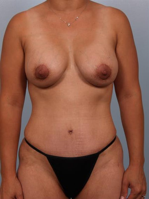 Breast Lift with Implants Gallery - Patient 1612688 - Image 4