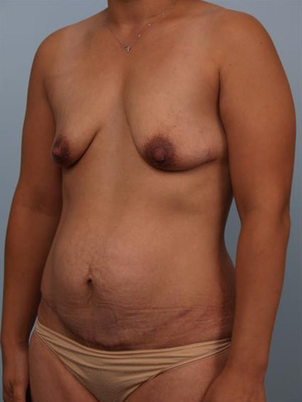 Breast Lift with Implants Gallery - Patient 1612688 - Image 5
