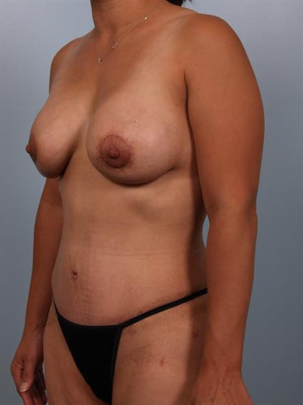 Breast Lift with Implants Gallery - Patient 1612688 - Image 6