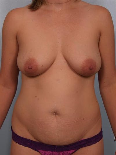 Breast Lift with Implants Gallery - Patient 1612689 - Image 1
