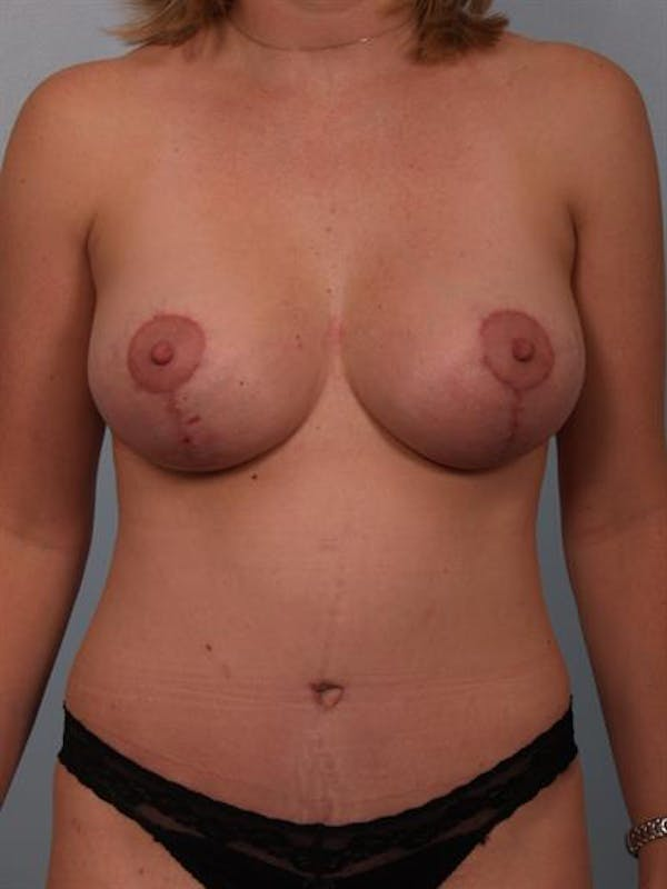 Breast Lift with Implants Gallery - Patient 1612689 - Image 2