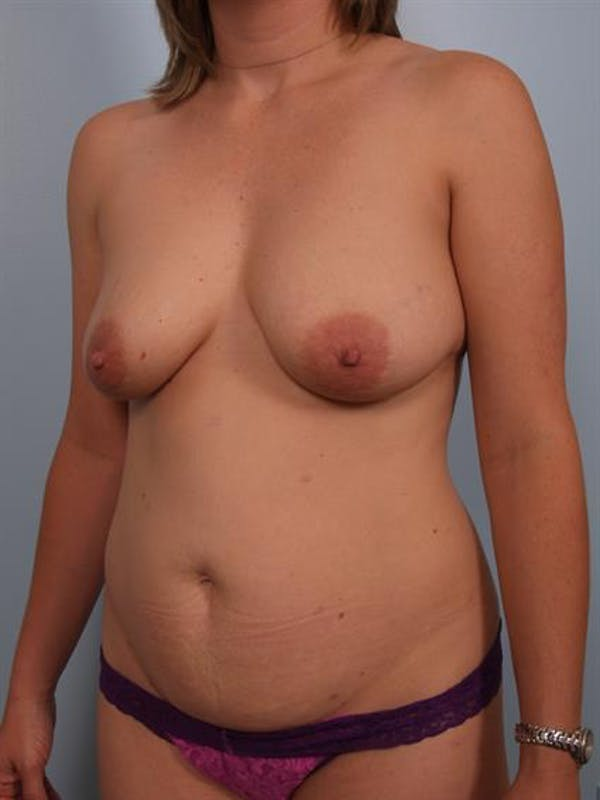 Breast Lift with Implants Gallery - Patient 1612689 - Image 3