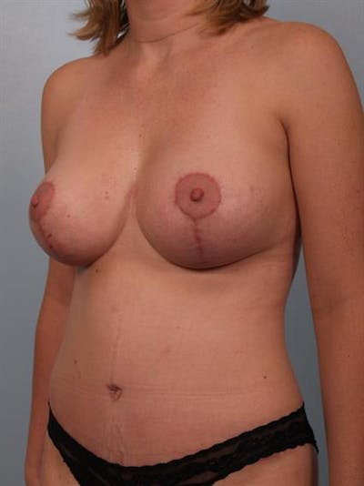 Breast Lift with Implants Gallery - Patient 1612689 - Image 4