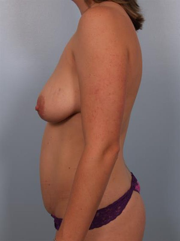 Breast Lift with Implants Gallery - Patient 1612689 - Image 5